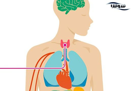 کم کاری تیروئید   هیپوتیروئیدی  (Hypothyroidism)