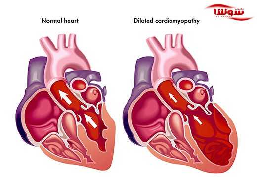 نارسایی قلب (Heart failure)