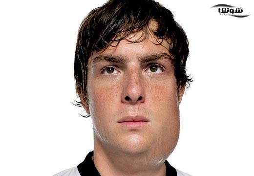 اوریون (Mumps)