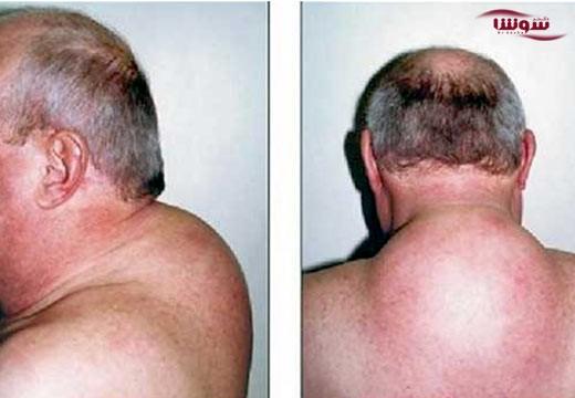 سندروم کوشینگ (Cushing's syndrome)