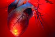 آریتمی | ضربان نامنظم قلب
