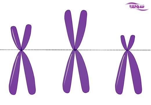 آگاماگلوبولینمی وابسته به X-LINKED AGAMMAGLOBULINEMIA) X)