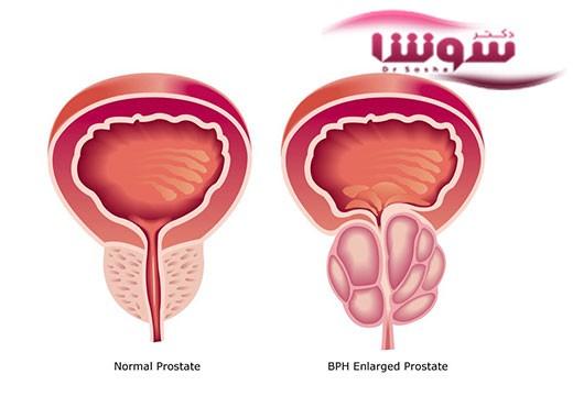 کنترل بزرگی پروستات در مردان با این مواد غذایی