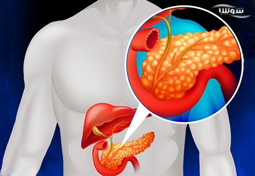 سرطان پانکراس | سرطان لوزالمعده  (Pancreatic cancer)