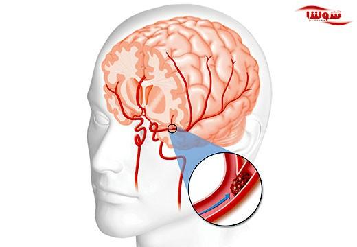 سکته مغزی  (stroke)