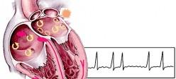 فیبریلاسیون دهلیزی