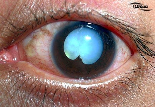 تومور شبکیه | رتینوبلاستوم (Retinoblastoma)