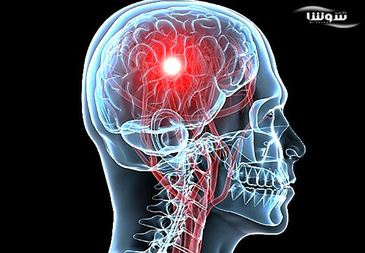 آنسفالیت  (Encephalitis)