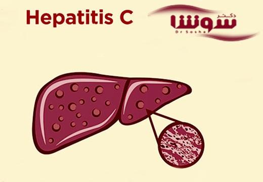 با خستگی ناشی از بیماری هپاتیت C چهکار کنیم؟