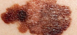 سرطان سلولهای ملانوما پوست