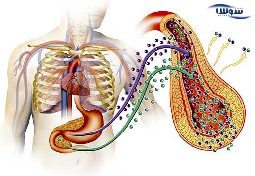سندروم متابولیک  (metabolic syndrome)
