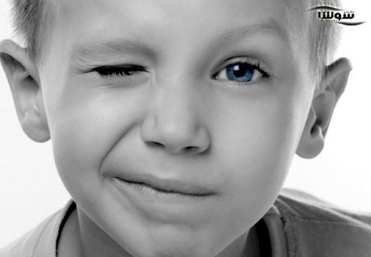 اختلالات تیک  (Tic disorder)