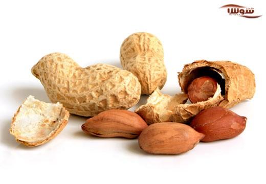 آلرژی به بادام زمینی (Peanut allergy)