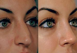 علت توجه به ملاحظات پزشکی بعد از جراحی زیبایی بینی