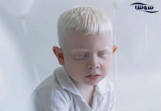 زالی | آلبینیسم  (Albinism)