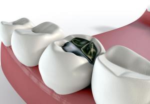 پر کردن نقرهای دندان بد است