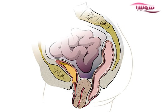 افتادگی رحم  (Uterine prolapse)