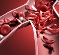 بیماری کم خونی داسی شکل