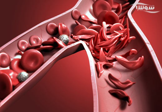 کم خونی داسی شکل  (Sickle cell anemia)