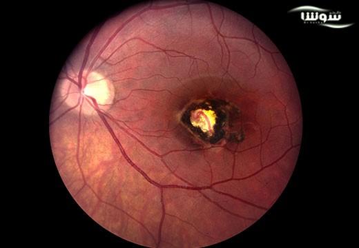 توکسوپلاسموزیس   توکسوپلاسموز  (Toxoplasmosis)