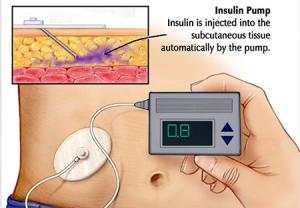 سیستم پانکراس مصنوعی برای درمان دیابت نوع 1
