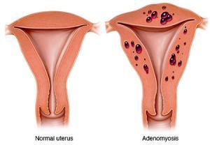 منوراژی   درد شدید قاعدگی (Menorrhagia)