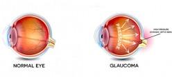 گلوکوم | آب سیاه چشم