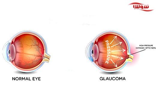 گلوکوم | آب سیاه چشم  (Glaucoma)