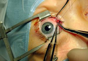 خطرات ناشی از جراحی چشم با لیزر