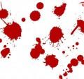 لکه بینی بین قاعدگی | خونریزی واژینال
