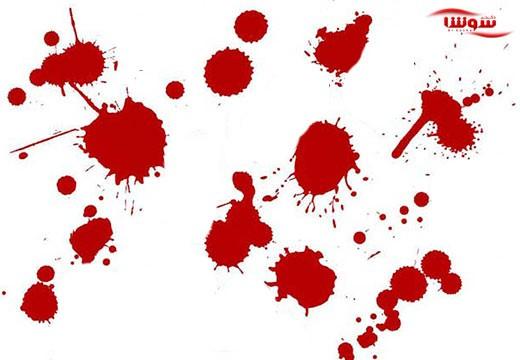 لکه بینی بین قاعدگی | خونریزی واژینال  (Vaginal bleeding)