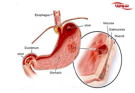 زخم های گوارشی  (Peptic ulcer)