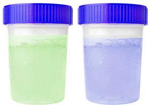 تغییر رنگ ادرار به آبی یا سبز
