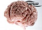 بهترین مکمل های خوراکی برای تقویت و افزایش حافظه