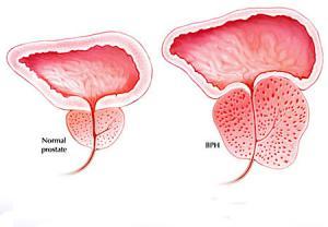 بزرگ شدن پروستات از عوامل ایجاد اختلال نعوظ در مردان