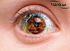 دلایل کم شدن بینایی چیست؟ علت کاهش بینایی چشم