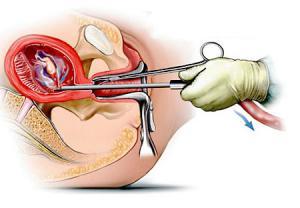 روش های سقط جنین مناسب
