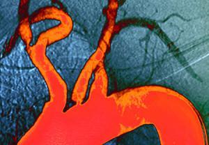 آزمایش غربالگری برای تشخیص میزان کلسترول
