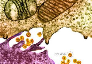 تشخیص بیماری نقص ایمنی اکتسابی (ایدز)