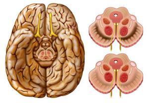 بیماری پارکینسون در اثر آسیب سلولهای تولید کننده دوپامین ایجاد میشود