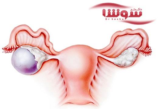داروی جديد برای درمان سرطان تخمدان پيشرفته