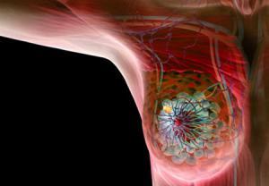 مهمترین علائم سرطان سینه چیست؟