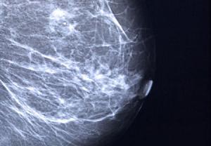 سونوگرافی و MRI