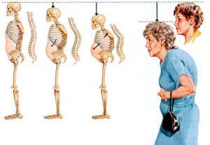 علائم بیماری پوکی استخوان را بشناسید