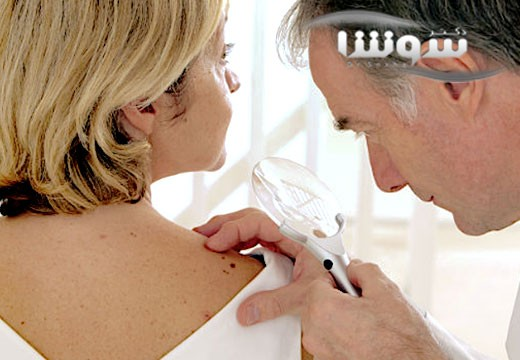 چرا خطر سرطان پوست در ماههای زمستانی بیشتر است؟