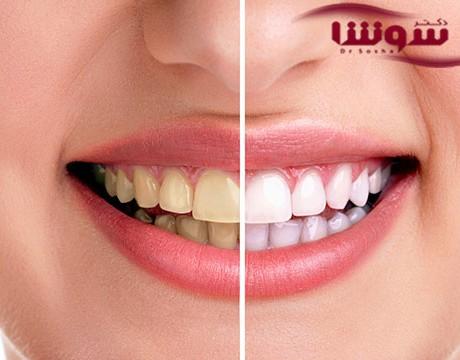 بلیچینگ دندان | سفید کردن دندان با زغال