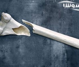 پیشگیری از شکستگی استخوان در پوکی استخوان