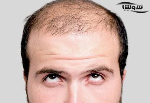 دارو های ضد ریزش مو میتوانند مشکلات جنسی بوجود بیاورند؟