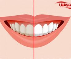 بلیچینگ دندان | سفید کردن دندان در خانه