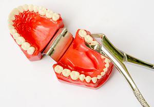 بوی بد دهان ، مشکل رایج بعد از کشیدن دندان عقل
